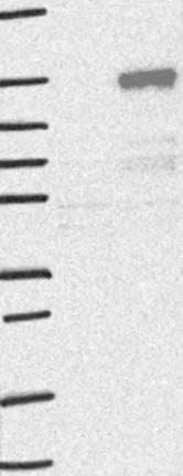 Western blot - Anti-ETAA1 antibody (ab122245)