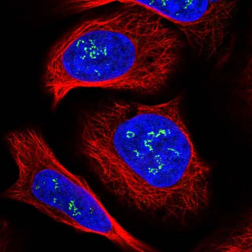 Immunocytochemistry/ Immunofluorescence - Anti-DMXL1 antibody (ab122335)