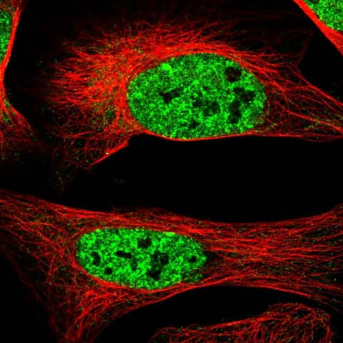 Immunocytochemistry/ Immunofluorescence - Anti-PIGY antibody (ab122338)