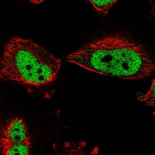 Immunocytochemistry/ Immunofluorescence - Anti-BOD1L antibody (ab122380)