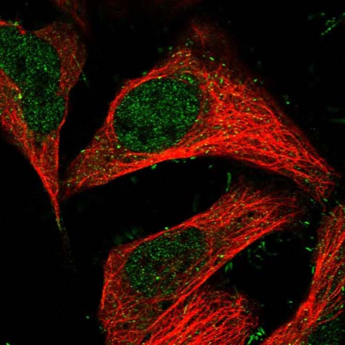 Immunocytochemistry/ Immunofluorescence - Anti-C5ORF44 antibody (ab122413)