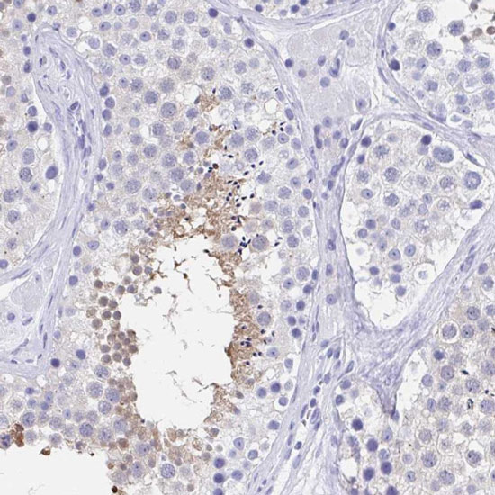 Immunohistochemistry (Formalin/PFA-fixed paraffin-embedded sections) - Anti-C10orf53 antibody (ab122426)