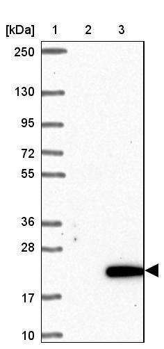 Western blot - Anti-C10orf53 antibody (ab122426)
