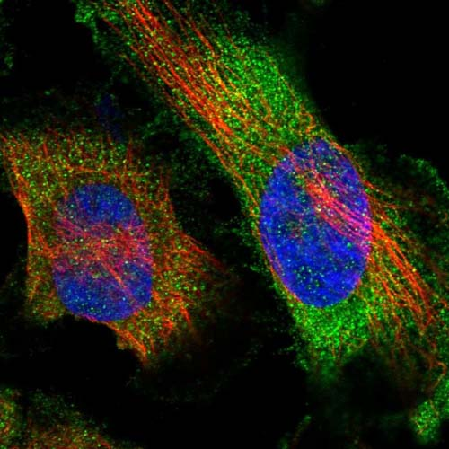 Immunocytochemistry/ Immunofluorescence - Anti-MYOZ3 antibody (ab122540)