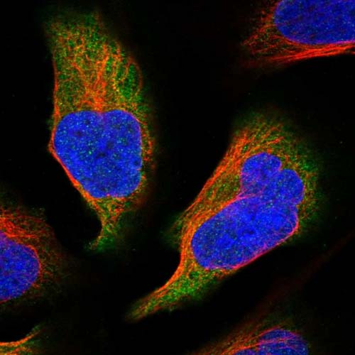 Immunocytochemistry/ Immunofluorescence - Anti-C11orf45 antibody (ab122577)