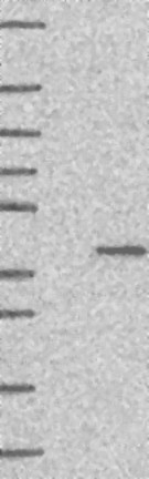Western blot - Anti-MFSD5 antibody (ab122585)