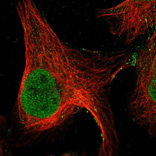 Immunocytochemistry/ Immunofluorescence - Anti-GRXCR1 antibody (ab122670)