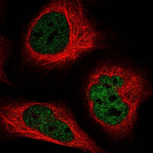 Immunocytochemistry/ Immunofluorescence - Anti-ADAT1 antibody (ab122676)