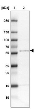 Western blot - Anti-TTC31 antibody (ab122745)