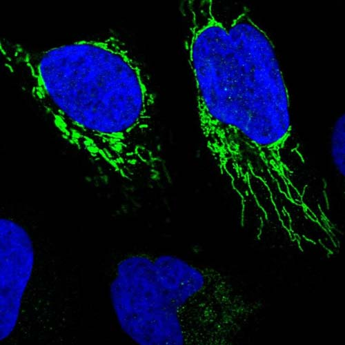 Immunocytochemistry/ Immunofluorescence - Anti-C12orf23 antibody (ab122784)