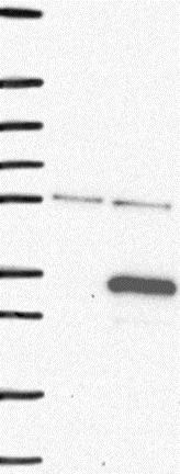 Western blot - Anti-FAM71C antibody (ab122799)