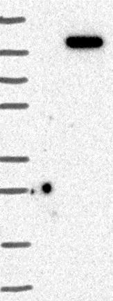 Western blot - Anti-DNAJC16 antibody (ab122855)