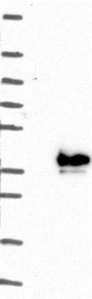 Western blot - Anti-FAM151B antibody (ab122863)