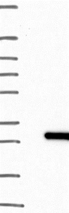 Western blot - Anti-C1orf123 antibody (ab122865)