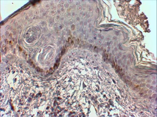 Immunohistochemistry - Anti-Mast Cell Chymase antibody (ab123510)