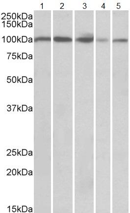 Western blot - Anti-SIDT1 antibody (ab123808)