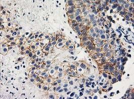Immunohistochemistry (Formalin/PFA-fixed paraffin-embedded sections) - Anti-Apc2 antibody [OTI1A6] (ab123855)