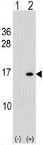 Western blot - Anti-Histone H2B antibody (ab124054)