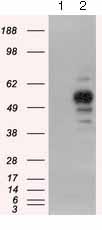 Western blot - Anti-PKA R2 antibody [OTI5F1] (ab124400)