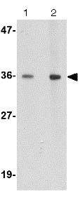 Western blot - Anti-HAPLN2 antibody (ab124504)
