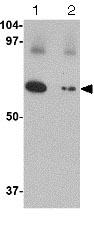 Western blot - Anti-SLC22A17 antibody (ab124506)