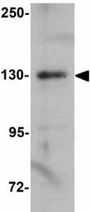 Western blot - Anti-AREB6 antibody (ab124512)