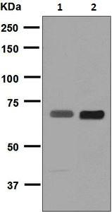 - Anti-Placental alkaline phosphatase (PLAP) antibody [EPR6140] (ab124772)