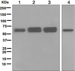 Western blot - Anti-IGF2BP2 antibody [EPR6741(B)] (ab124930)