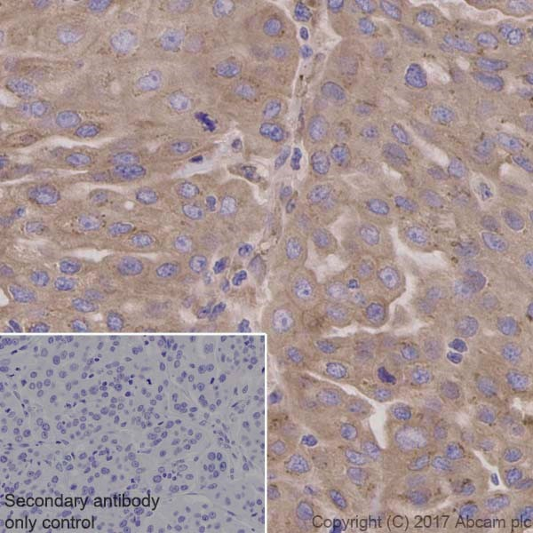 Immunohistochemistry (Formalin/PFA-fixed paraffin-embedded sections) - Anti-RYK antibody [EPR5169(2)] (ab124961)