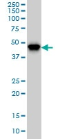 Western blot - Anti-PIP5K2 alpha antibody [3A3] (ab125107)