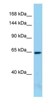 Western blot - Anti-Acinus antibody (ab125318)