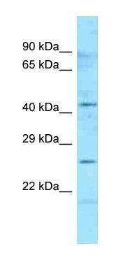 Western blot - Anti-HLA DMB antibody (ab125387)