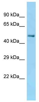 Western blot - Anti-TCP1 beta antibody (ab125439)