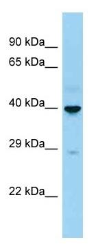 Western blot - Anti-Langerin antibody (ab125476)