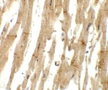Immunohistochemistry (Formalin/PFA-fixed paraffin-embedded sections) - Anti-MLIP antibody (ab125623)