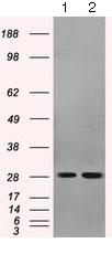 Western blot - Anti-RPA32/RPA2 antibody [OTI9A1] (ab125681)