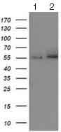 Western blot - Anti-Catalase antibody [1B6] (ab125688)