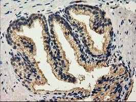 Immunohistochemistry (Formalin/PFA-fixed paraffin-embedded sections) - Anti-Catalase antibody [1B6] (ab125688)