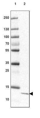Western blot - Anti-C6orf129 antibody (ab126337)