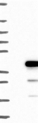 Western blot - Anti-SGTB antibody (ab126494)