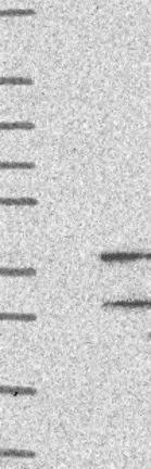 Western blot - Anti-OR8S1 antibody (ab126531)