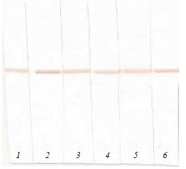Western blot - Anti-proBNP antibody [24E11] (HRP) (ab13123)