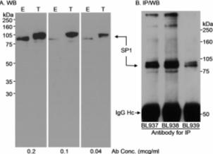 Western blot - Anti-SP1 antibody - ChIP Grade (ab13370)