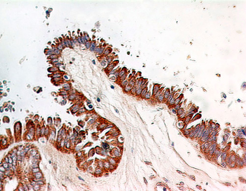 Immunohistochemistry (Formalin/PFA-fixed paraffin-embedded sections) - Anti-NF-kB p65 [112A1021] antibody (ab13594)