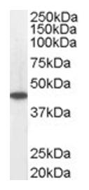 Western blot - Anti-ACADM antibody (ab13677)