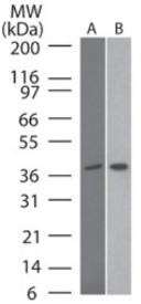 Western blot - Anti-Tin2 antibody [59B388] (ab13791)