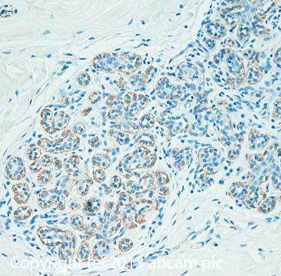 Immunohistochemistry (Formalin/PFA-fixed paraffin-embedded sections) - Anti-CXCR4 antibody (ab13854)