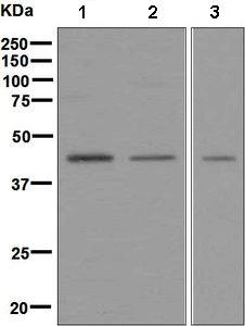 Western blot - Anti-PHD2 / prolyl hydroxylase antibody [EPR3660(B)(2)] (ab133630)