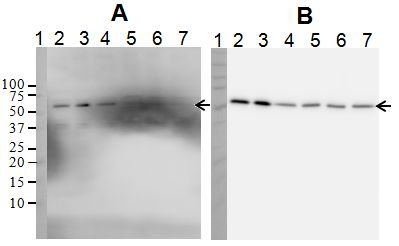 Specificity of antibodies demonstrated by Western Blot Analysis