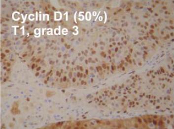 Immunohistochemistry (Formalin/PFA-fixed paraffin-embedded sections) - Anti-Cyclin D1 antibody [SP4] (ab137875)